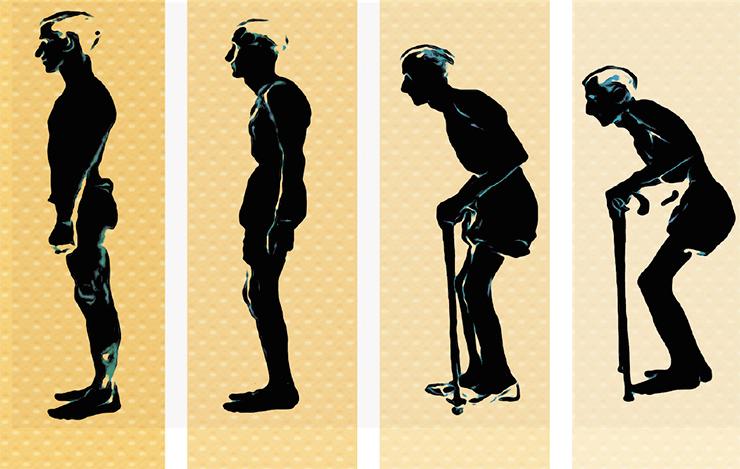 osteoporosis8.jpg