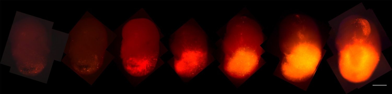 Glioblastoma.jpg