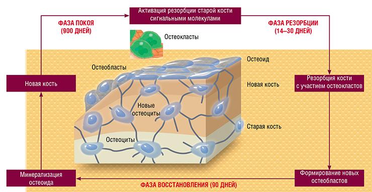 osteoporosis2.jpg