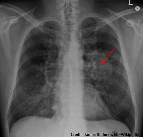 LungCA.jpg