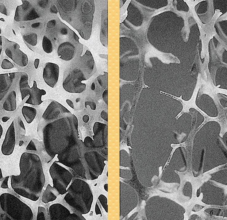 osteoporosis1.jpg